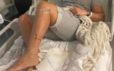 Manuel Martinez, victime des attentats de Zaventem, vient de subir sa 34ème opération